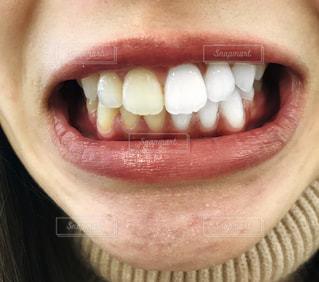 女性の歯の写真・画像素材[2836846]
