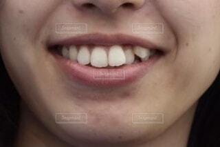 口元のクローズアップの写真・画像素材[3919588]