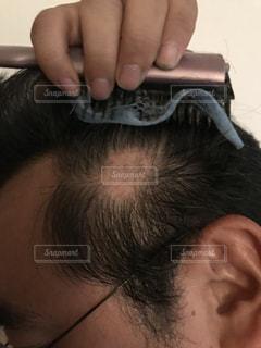 脱毛症の写真・画像素材[1525424]