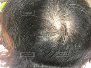 薄毛の写真・画像素材[1469575]