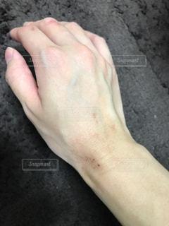 肌荒れの写真・画像素材[1383475]