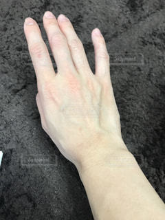肌荒れが治りました。の写真・画像素材[1412440]