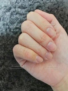 あかぎれ、肌荒れの手の写真・画像素材[1725732]