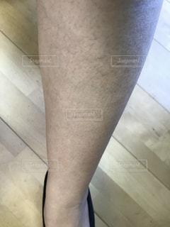 足の毛の写真・画像素材[1406247]