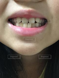 子供の歯の矯正前の写真・画像素材[1433358]