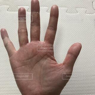 汗疱による手荒れの写真・画像素材[3760001]