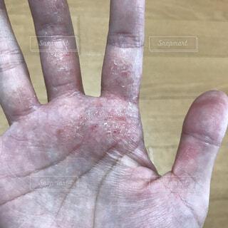 汗疱による手荒れの写真・画像素材[3760003]
