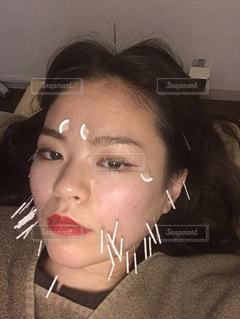 美容鍼の写真・画像素材[2260366]