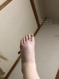 ブヨに刺されて象の足!の写真・画像素材[1477364]