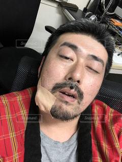 アゴの粉瘤の手術後!の写真・画像素材[1740930]
