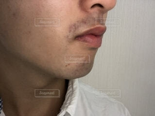 髭剃り負けの写真・画像素材[1518106]
