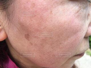 肌のアップの写真・画像素材[2181363]