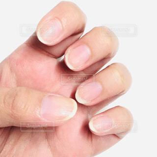 ネイルをとったら爪が剥がれました。の写真・画像素材[2615581]