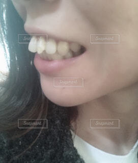 前歯の写真・画像素材[1668698]