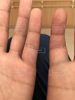 骨折で腫れる小指の写真・画像素材[1727237]