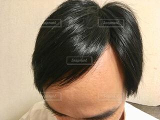 男性の髪の生え際の写真・画像素材[2120753]