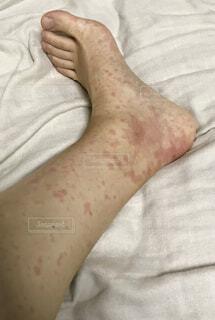 足の写真・画像素材[1581953]