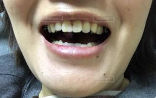 歯並びの写真・画像素材[1599196]