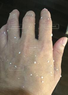 手の角質ケアの写真・画像素材[2642485]