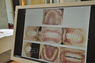 口腔内写真の写真・画像素材[1586618]