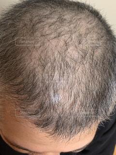 30代男性頭皮の写真・画像素材[1597820]