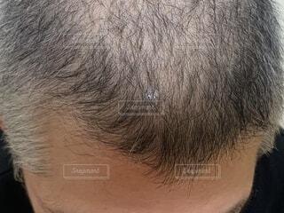 30代男性頭皮の写真・画像素材[1597821]