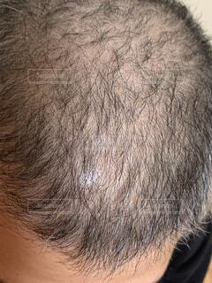 30代男性頭皮の写真・画像素材[1597824]