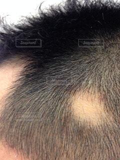 ストレス性円形脱毛症の写真・画像素材[58457]