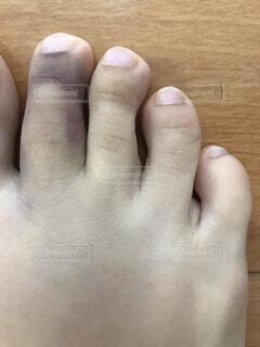 突き指の写真・画像素材[1627154]