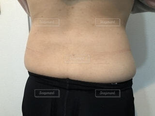 背中、腰まわりが太るの写真・画像素材[1699061]