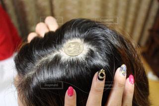 円形脱毛症の写真・画像素材[1791384]
