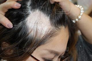 円形脱毛症の写真・画像素材[1791563]